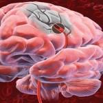 Симптомы, указывающие на обширный ишемический инсульт.