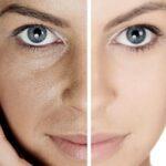 Почему кожа теряет эластичность?